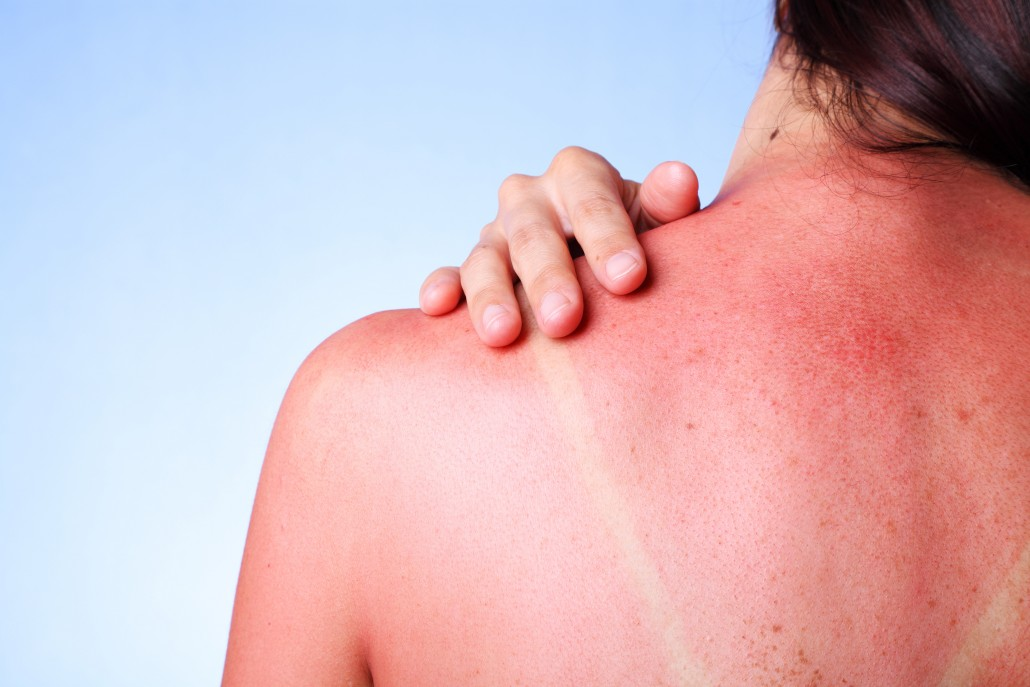 A female touching her sunburned shoulder